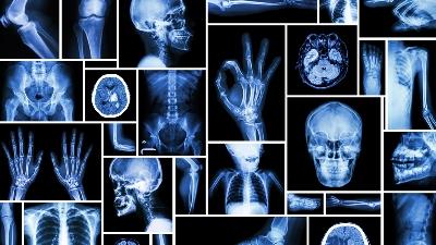 Diploma  (Medical Radiology Imaging Technology)